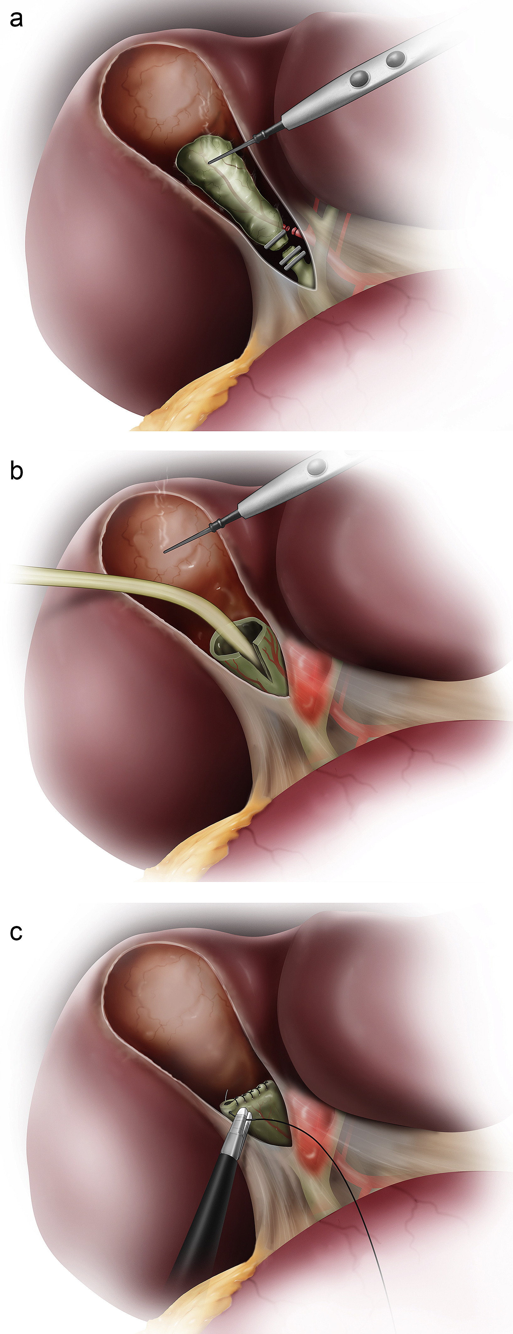 Subtotal Cholecystectomy For The Hostile Gallbladder Failure To